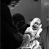 C-Section Birth For Blended Family in South Africa