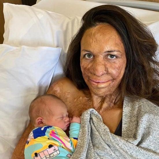 Turia Pitt Baby Photos