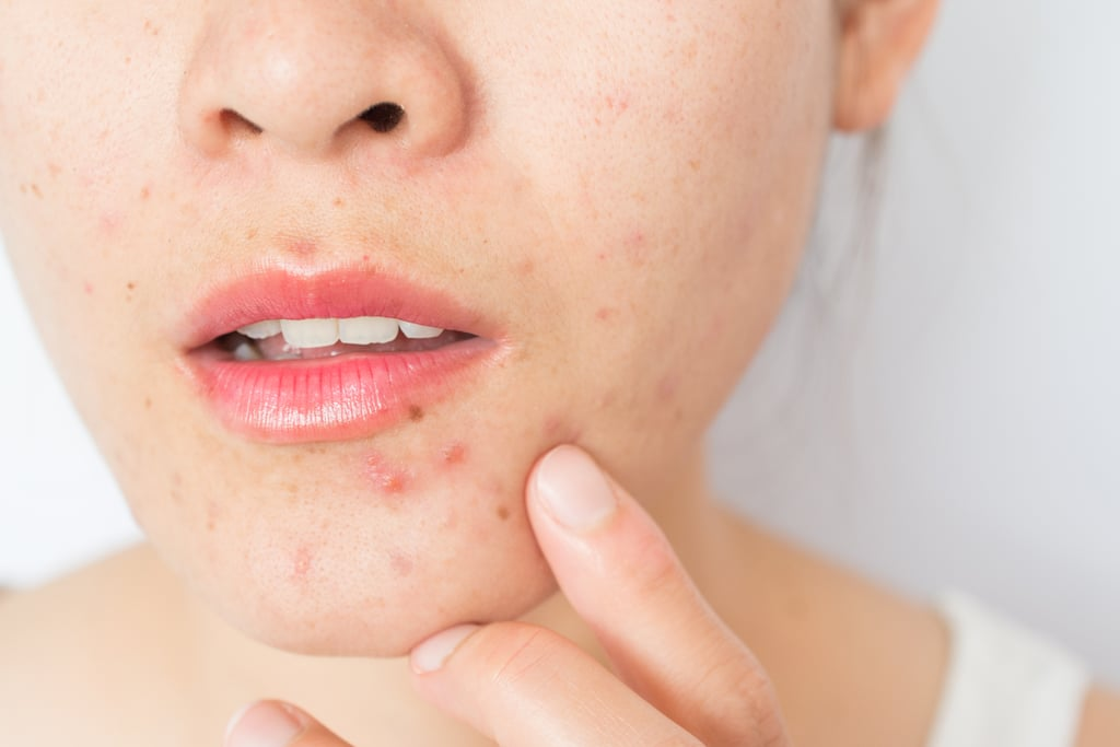 What's the Difference Between an Ingrown Hair and a Pimple?