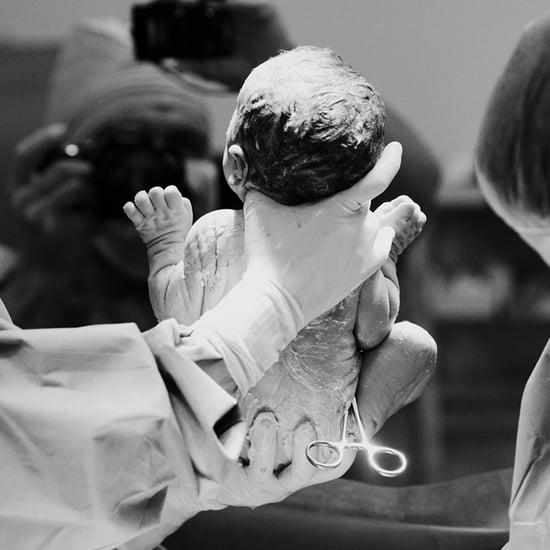 Dramatic C-Section Birth Photos