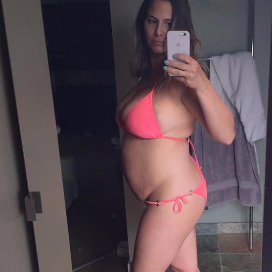 Before and After Weight Loss: TIU Kara