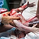 Photos of Babies Born En Caul