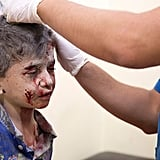 A doctor treats a young boy following an airstrike in eastern Aleppo.