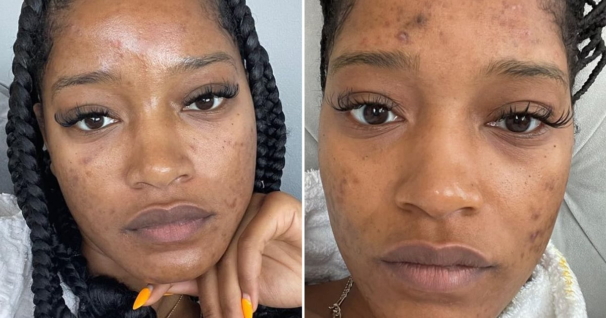 """Keke Palmer Has a PSA on Skin Care: """"What Works For Someone Else May Not Work For You"""".jpg"""