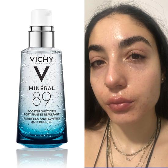 How to Keep Acne Skin Hydrated on Accutane