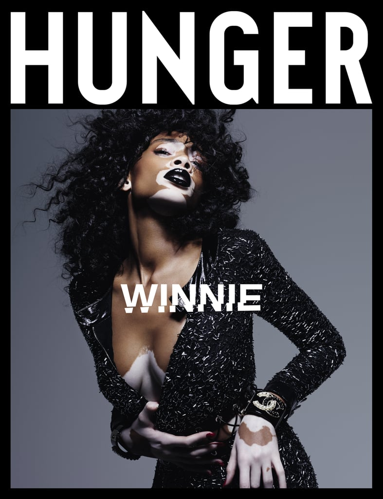 Winnie Harlow Hunger Magazine Cover October 2016