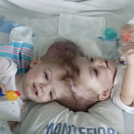 Twin Boys Conjoined at the Head Separated