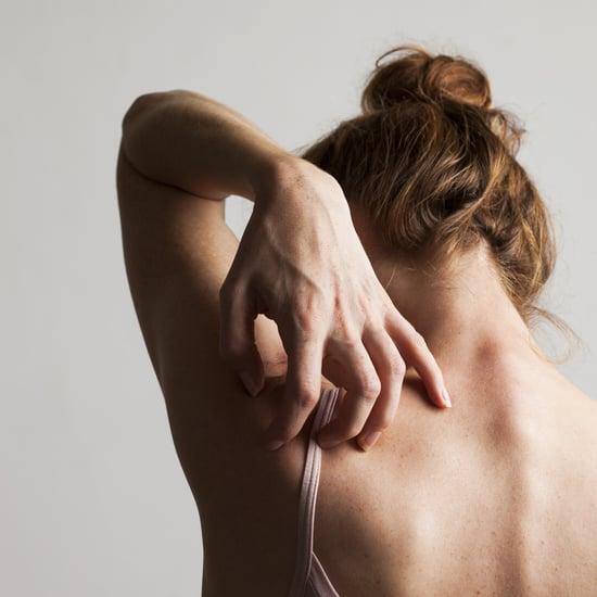 Can Coronavirus Cause Skin Rashes? Dermatologists Think So