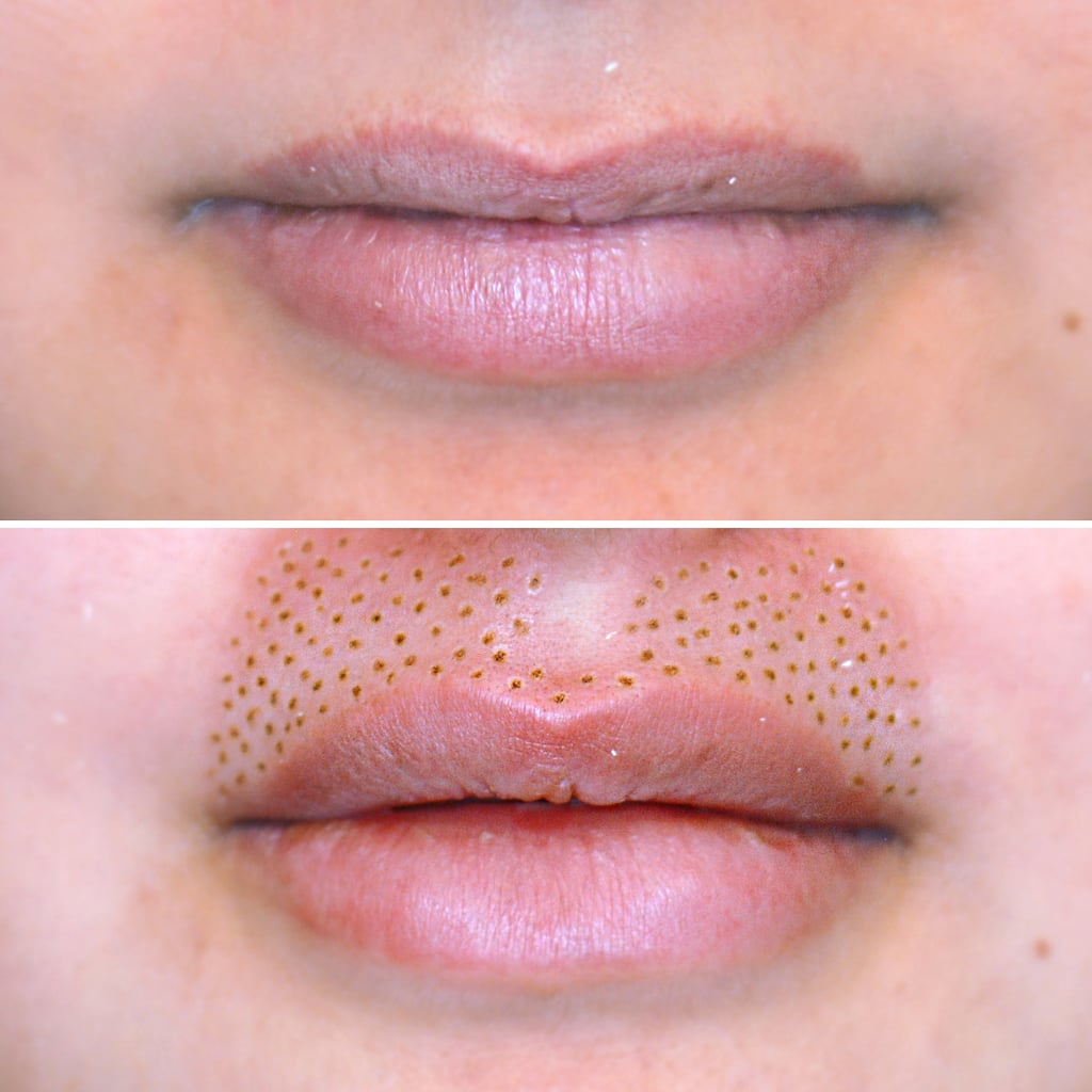 What Is Plasma Fibroblast Skin Tightening Popsugar Beauty