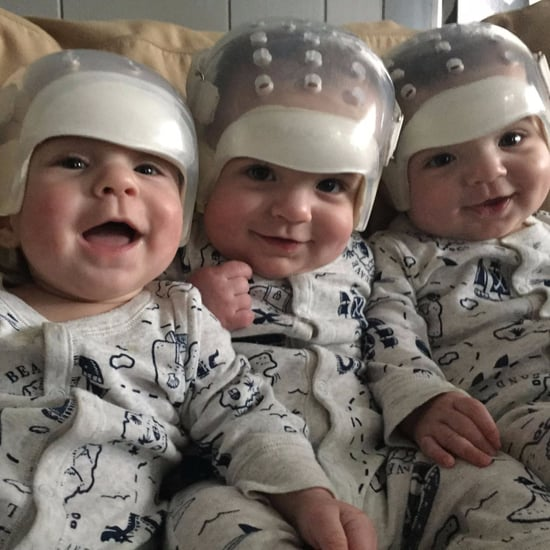 Triplets All Born With Rare Skull Defect