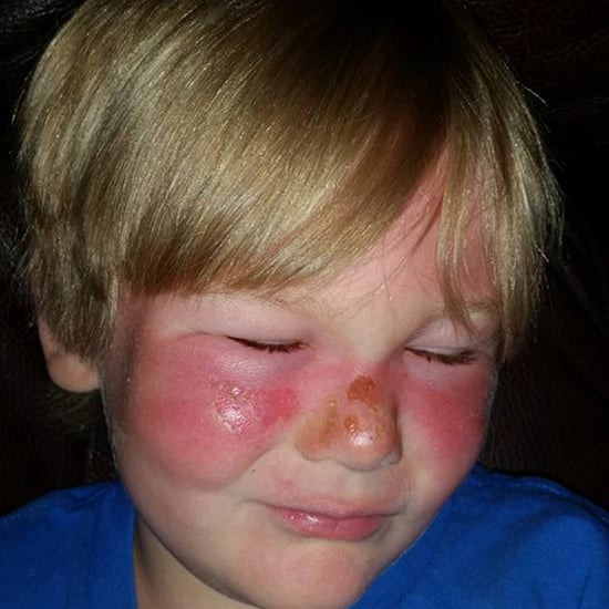 Boy Left With First-Degree Burns Despite Sunscreen