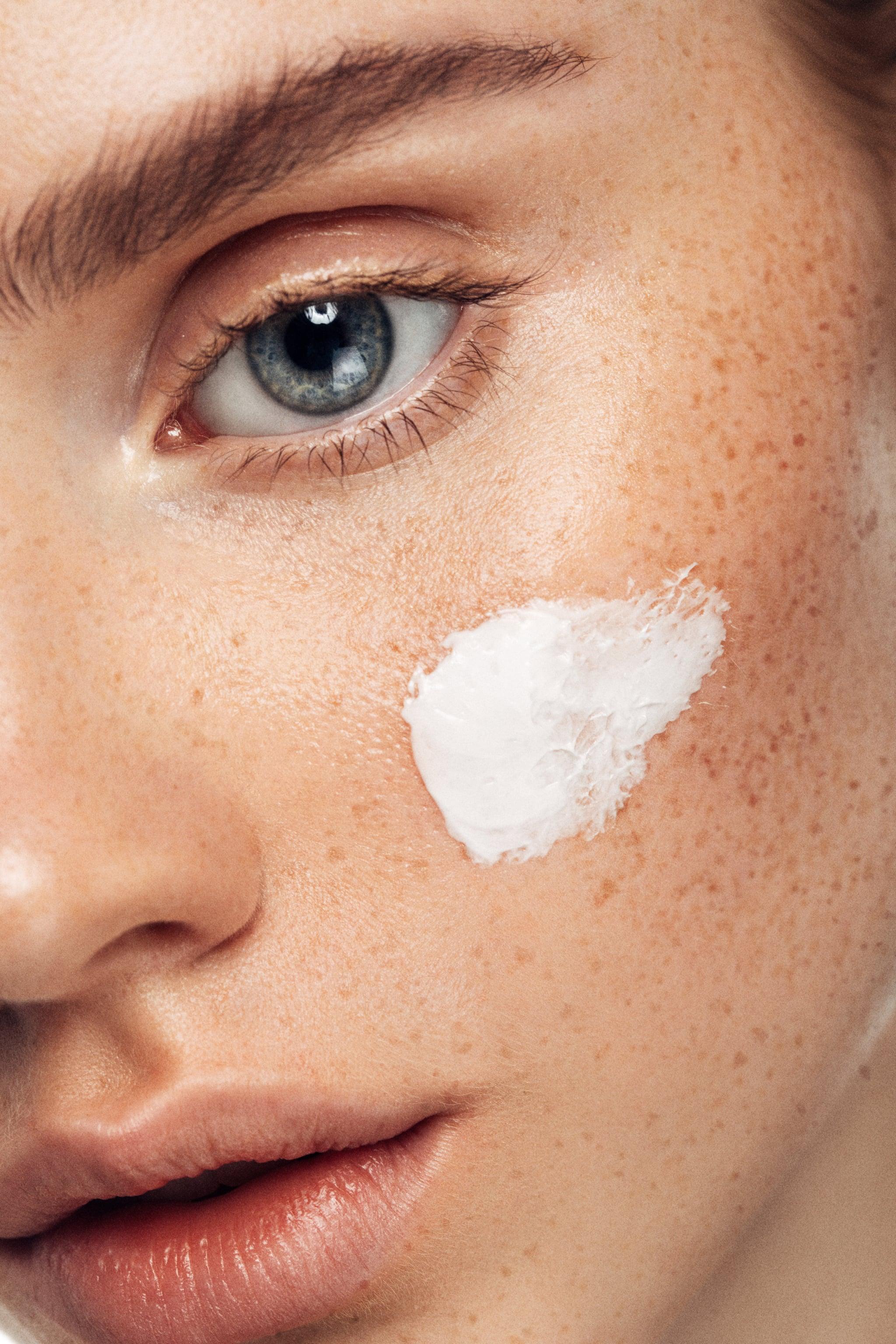 why acne prone skin