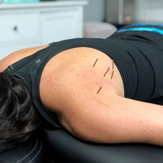 What's It Like to Get Dry Needling, and Does It Hurt?