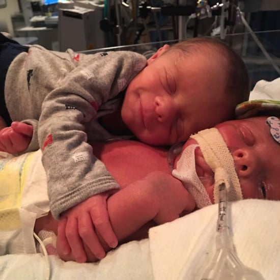 Photo of Twins Hugging Goes Viral Before 1 Twin's Death