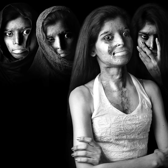 Acid Attack Survivor Portrait Series | Niraj Gera
