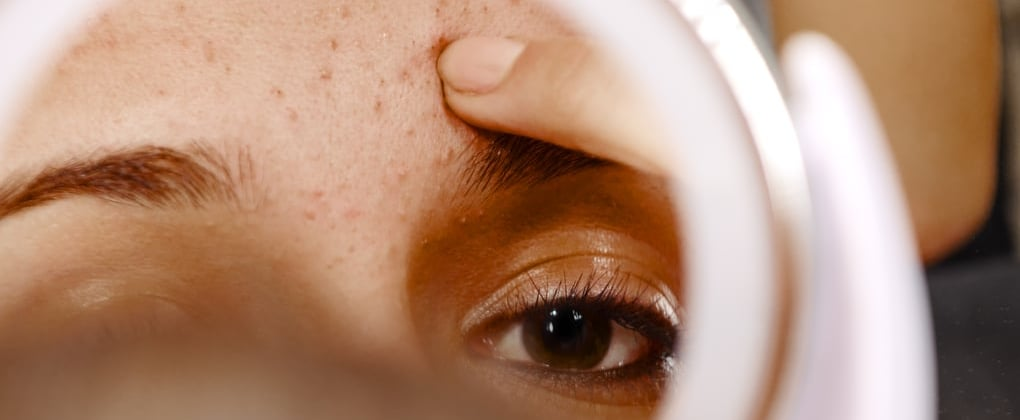 Is That a Pimple or an Ingrown Hair? Here's the Difference