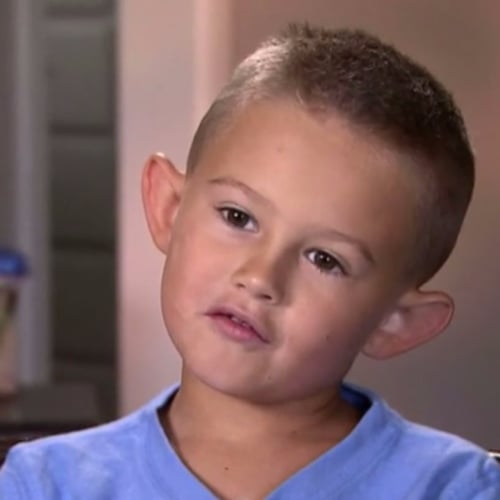 6-Year-Old Boy Gets Ear Surgery
