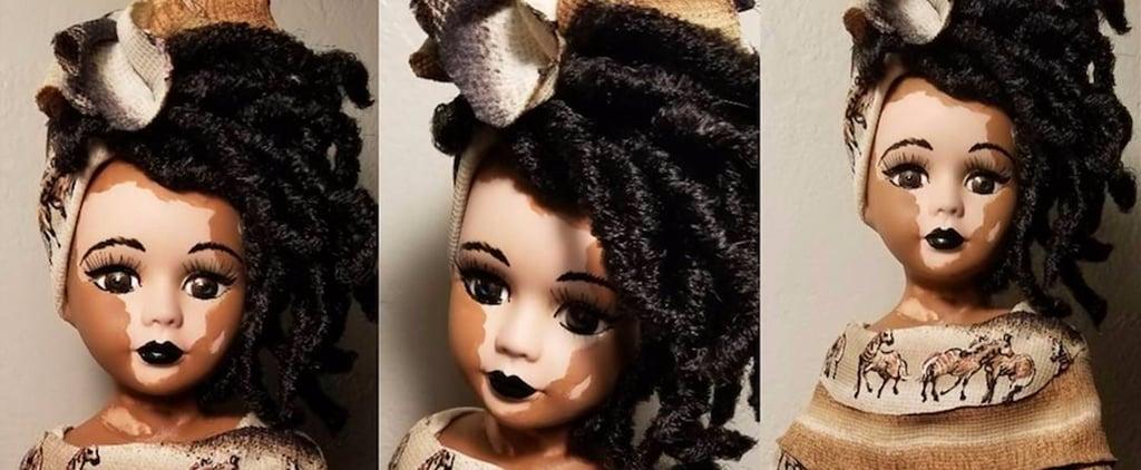 Vitiligo Dolls Now Exist, Because Barbie Isn't For Everyone