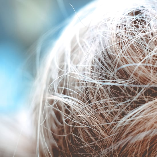 Facts About Head Lice