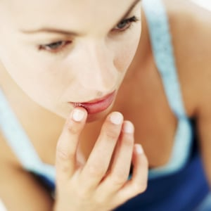5 Things: Preventing Chapped Lips
