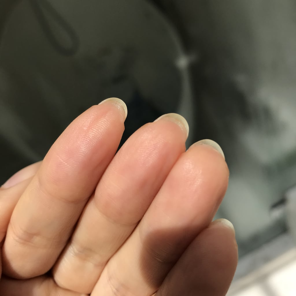 Reason For Skin Growth Under Nails   POPSUGAR Beauty