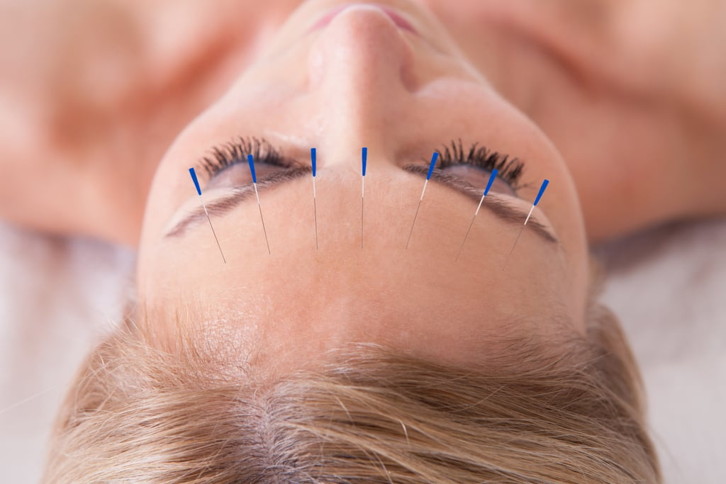 Skin Care Benefits of Acupuncture