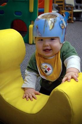 Flat Head Syndrome Helmets