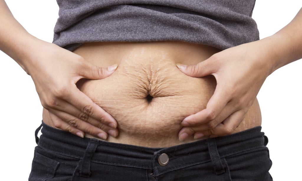 Losing Weight May Bring These Not-So-Great Surprises