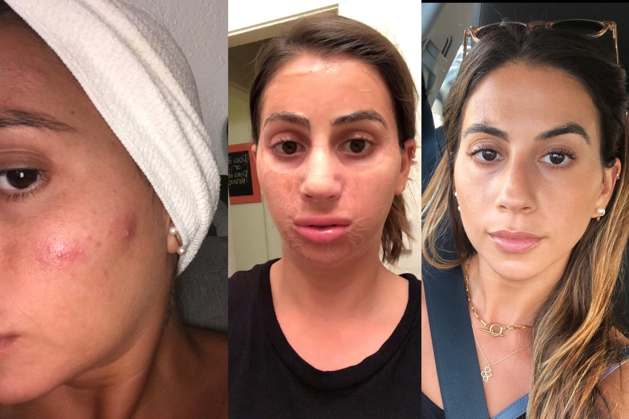 Editor Acne Confessions Personal Experiences With Breakouts Popsugar Beauty