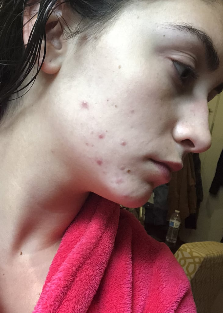 Two years ago, my acne presented itself in uncomfortable, red, cystic pimples around my jawline and some on my cheeks — hardly any popped up on my forehead or around my mouth. At the time I was working as a fashion and beauty editorial assistant (my first job out of college), and to say I was under a lot of stress is putting it very lightly. By the nature of my job, I had access to tons of skin-care products, but nothing I tried helped clear up my acne. That job stress, combined with the stress of having the worst skin of my life, put me at a low point. I had this idea in my head that because I work in the beauty industry, I shouldn't be experiencing skin issues like this and that it somehow meant I was bad at my job. Finally, after a few months waiting around for the issue to go away on its own, I visited my dermatologist. My derm confirmed what I was already thinking: I was experiencing hormonal breakouts, most likely aggravated by stress; common for women in their early 20s. (After talking it over with my mom, I found out she too had an issue with this around the same age.) I was prescribed two topical products, an acne cream for the morning and a retinol cream at night to help increase cellular turnover and decongest my pores, along with spironolactone, an oral medication traditionally used for high blood pressure but is now a dermatologist go-to for fighting persistent hormonal breakouts.