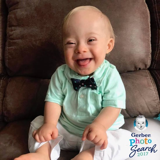 Gerber Baby With Down Syndrome