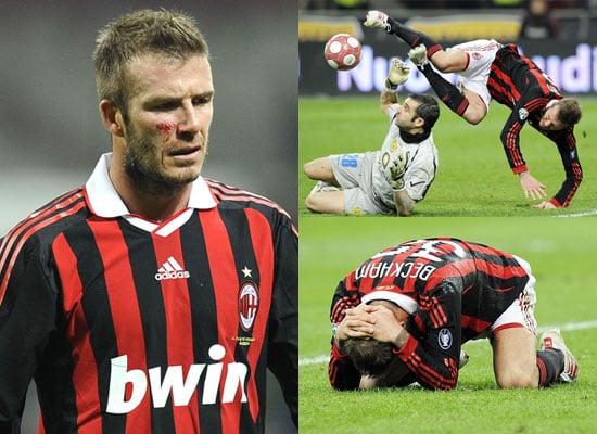 Photos of David Beckham Injured Out of World Cup