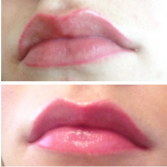 Would You Permanently Line Your Lips?