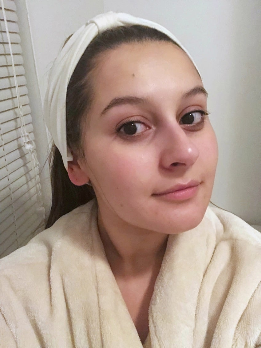 I Used Chemical Peel Pads Every Day For a Week, and This Is What Happened