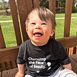 Photos of Babies With Down Syndrome