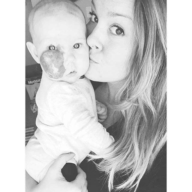 Baby With Capillary Hemangioma on Her Face