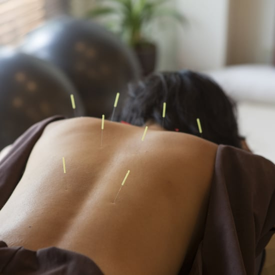 First Acupuncture Experience