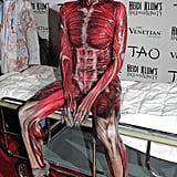 2011 — Skeleton