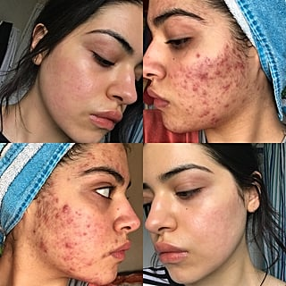 Acne Before and After Transformations