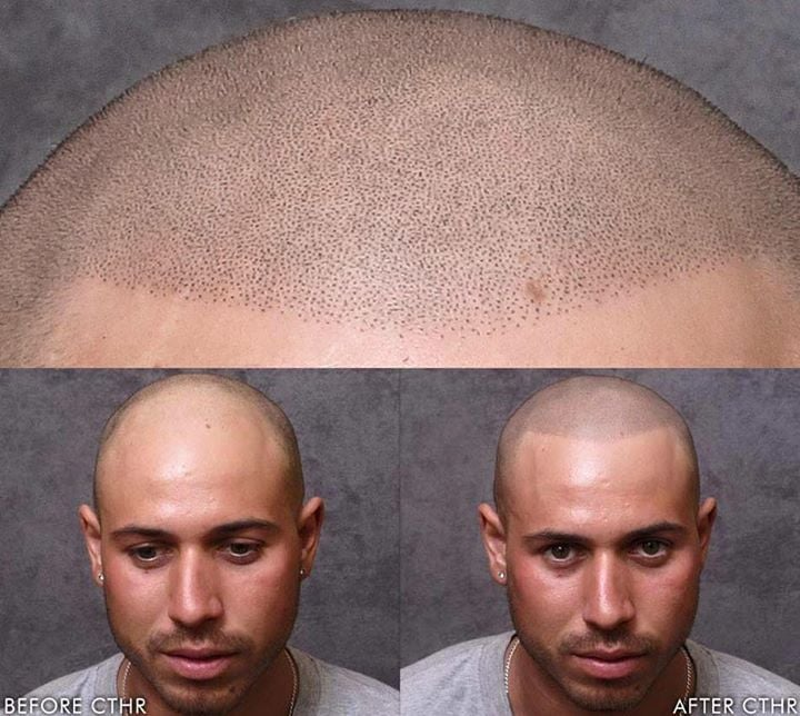 Hair Tattoos For Baldness