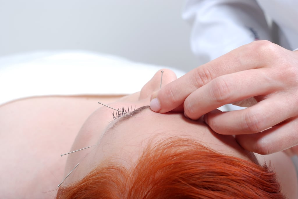 "How does acupuncture work for skin? There are two primary reasons to treat your skin with acupuncture therapy — health and beauty — and they are often connected. As you likely know from experience, nearly anything can affect your complexion, from stress, poor sleep, and a bad diet to hormonal imbalances and environmental factors. ""An acupuncturist must first diagnose the cause for a patient's skin problem then select proper acupuncture points for the treatment,"" Dr. Zhang explained. The acupuncturist can then treat the skin concern locally (on or around it) and/or via the meridians connected to the concern. To illustrate, Dr. Zhang cited a specific case: ""Hormones play an important part in some skin conditions. One female patient was suffering from very bad acne and an irregular period from her birth control medicine. After six treatments of focusing directly on her skin condition and her hormone points, her period became consistent and her acne was tremendously improved."" How do you treat signs of aging with acupuncture? Acupuncturists treat concerns like fine lines, wrinkles, and sagging with local treatments nicknamed the ""acupuncture face-lift."" Dr. Zhang told me that cosmetic acupuncture has been used since the Sung Dynasty (960-1279 AD) and kept the empress looking youthful. By inserting needles into specific points on the face, acupuncturists can stimulate collagen turnover and blood flow to nourish the skin and reduce the appearance of wrinkles."