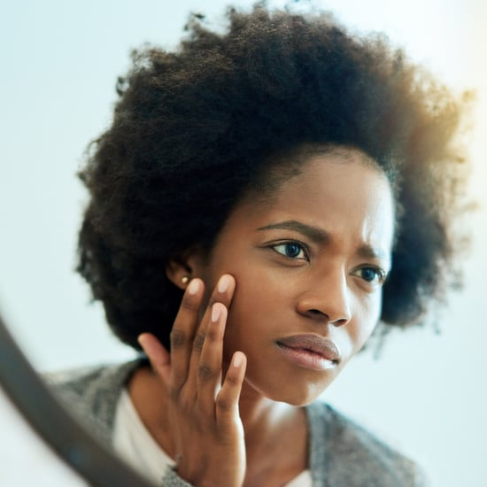 What Is Fungal Acne? How to Treat This Common Acne
