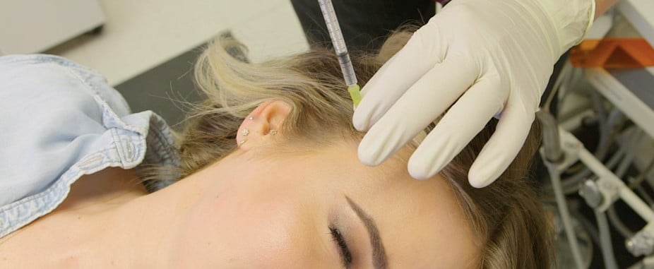 Blotox Botox For the Scalp