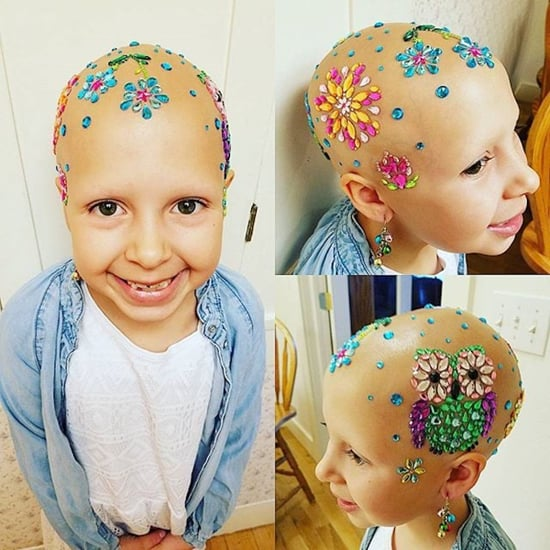 "This Girl With Alopecia Won ""Crazy Hair Day"" at Her School"