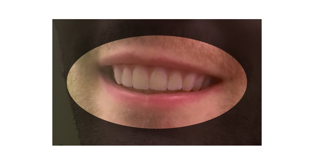 Amos's Teeth After | DIY Invisalign | POPSUGAR Beauty