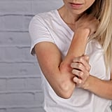 Stop the Eczema Itchiness