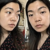 My Skin Before and Early Impressions