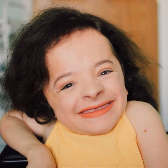 Michaela Davert Beauty Vlogger With Osteogenesis Imperfecta