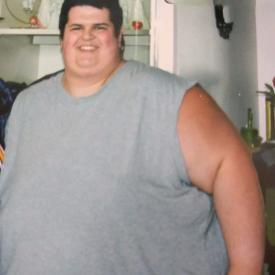 190-kg Weight-Loss Before and After