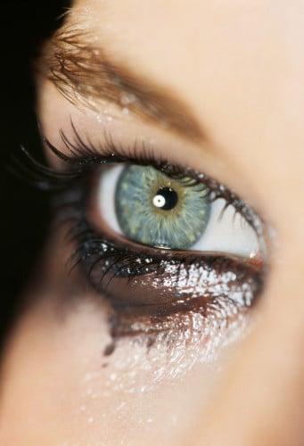dark circles under-eye bags